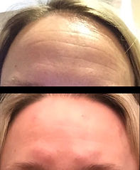 BOTOX FOREHEAD MANCHESTER