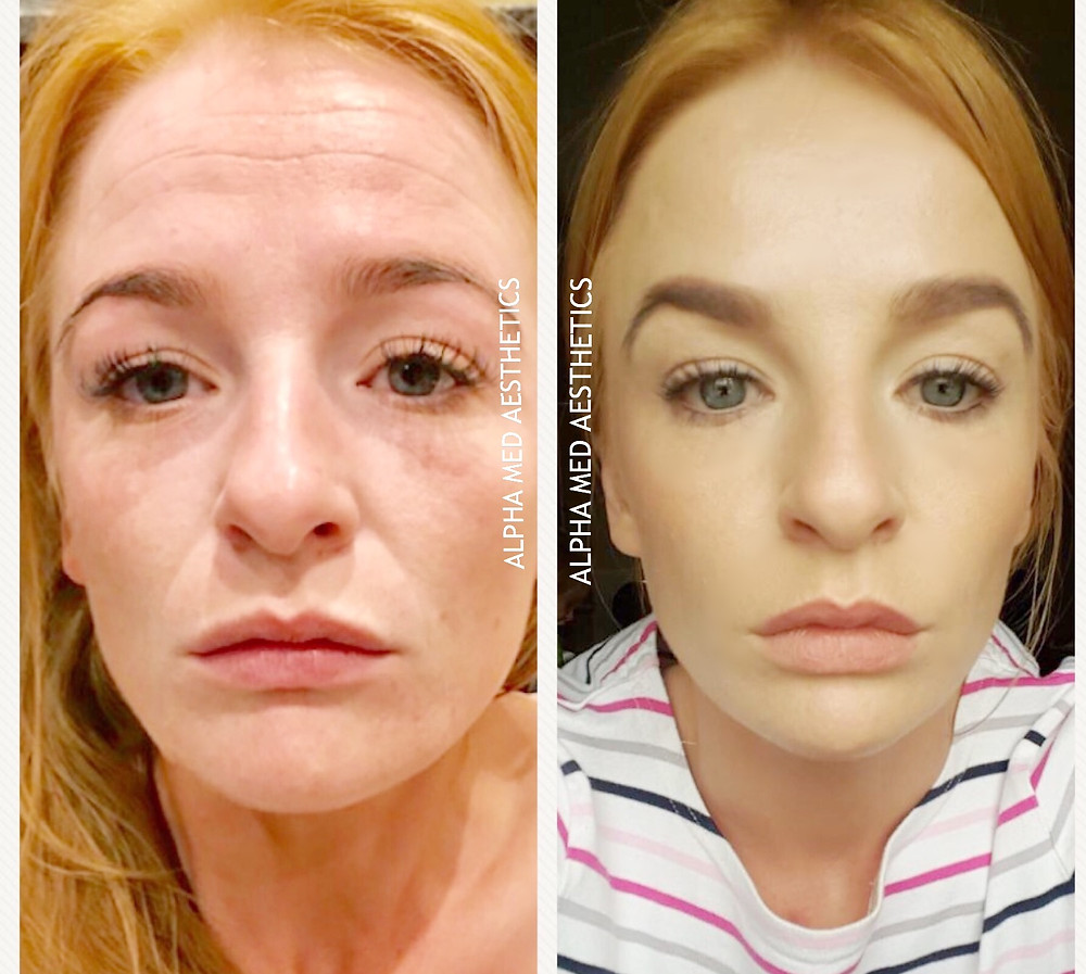 before and after botox and fillers