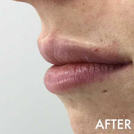 lip_fillers_treatment_3_img_7033_after.j