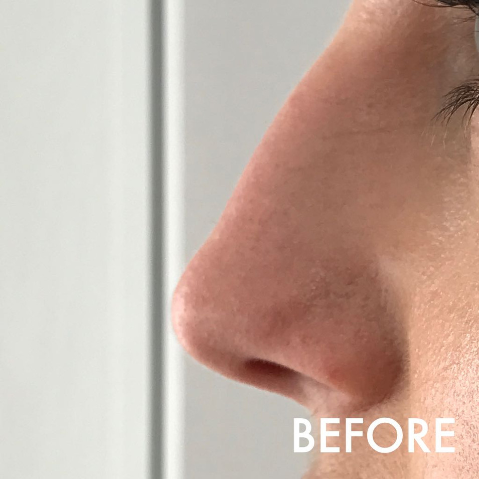 nose_treatment_2_before.jPG
