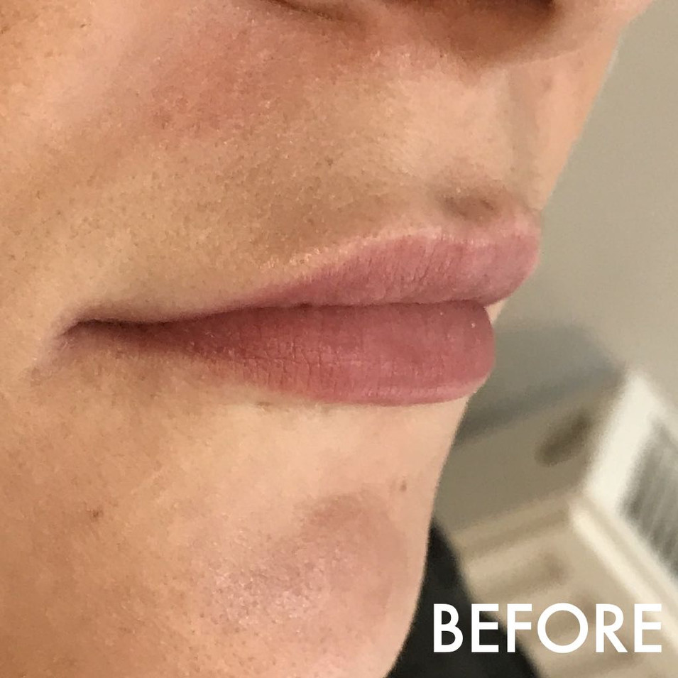 lip_fillers_treatment_10_img_4056_before