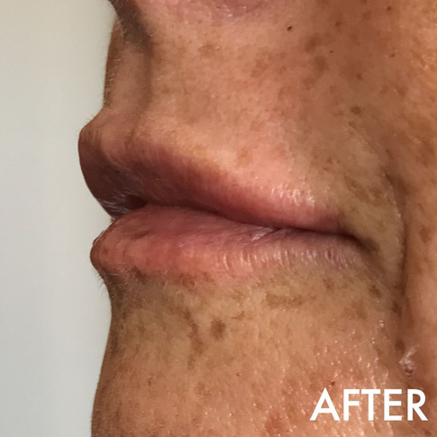 lip_fillers_treatment_8_img_4825_after.j