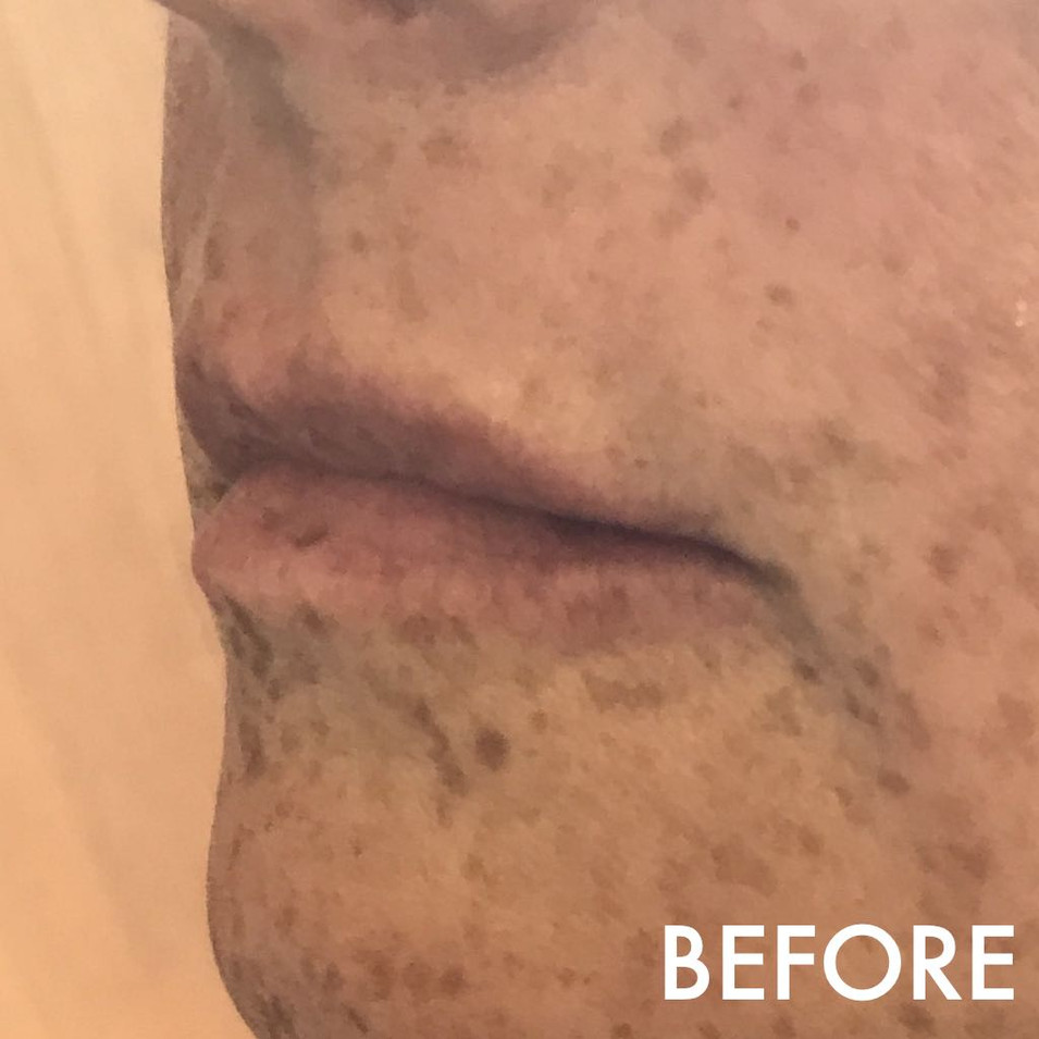 lip_fillers_treatment_8_img_4816_before.