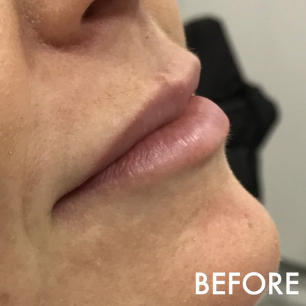 lip_fillers_treatment_4_img_6734_before.