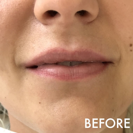 lip_fillers_treatment_5_img_6029_before.