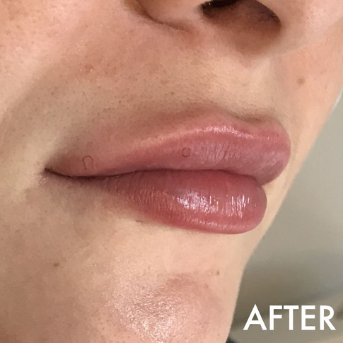 lip_fillers_treatment_10_img_4069_after.
