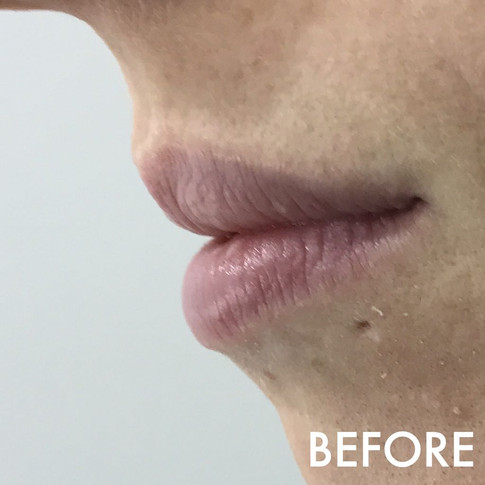lip_fillers_treatment_3_img_7006_before.