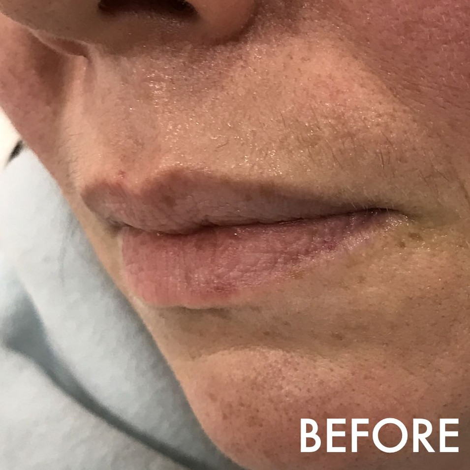 lip_fillers_treatment_7_img_6397_before.
