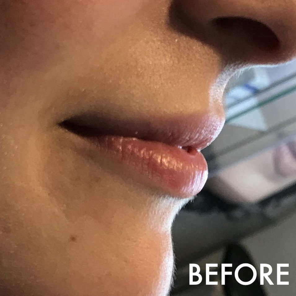 lip_fillers_treatment_9_img_4450_before.