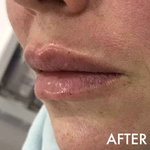 lip_fillers_treatment_7_img_6416_after.j