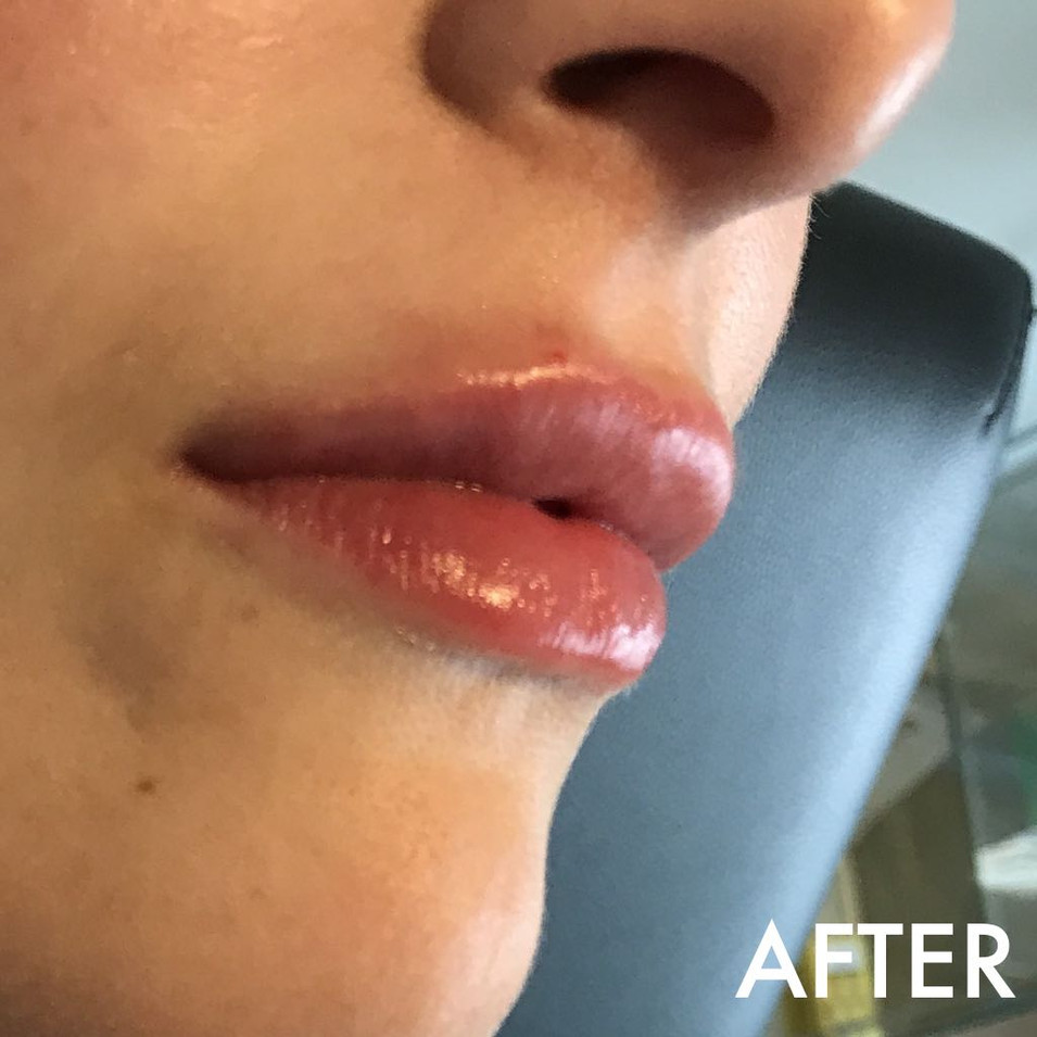 lip_fillers_treatment_9_img_4480_after.j