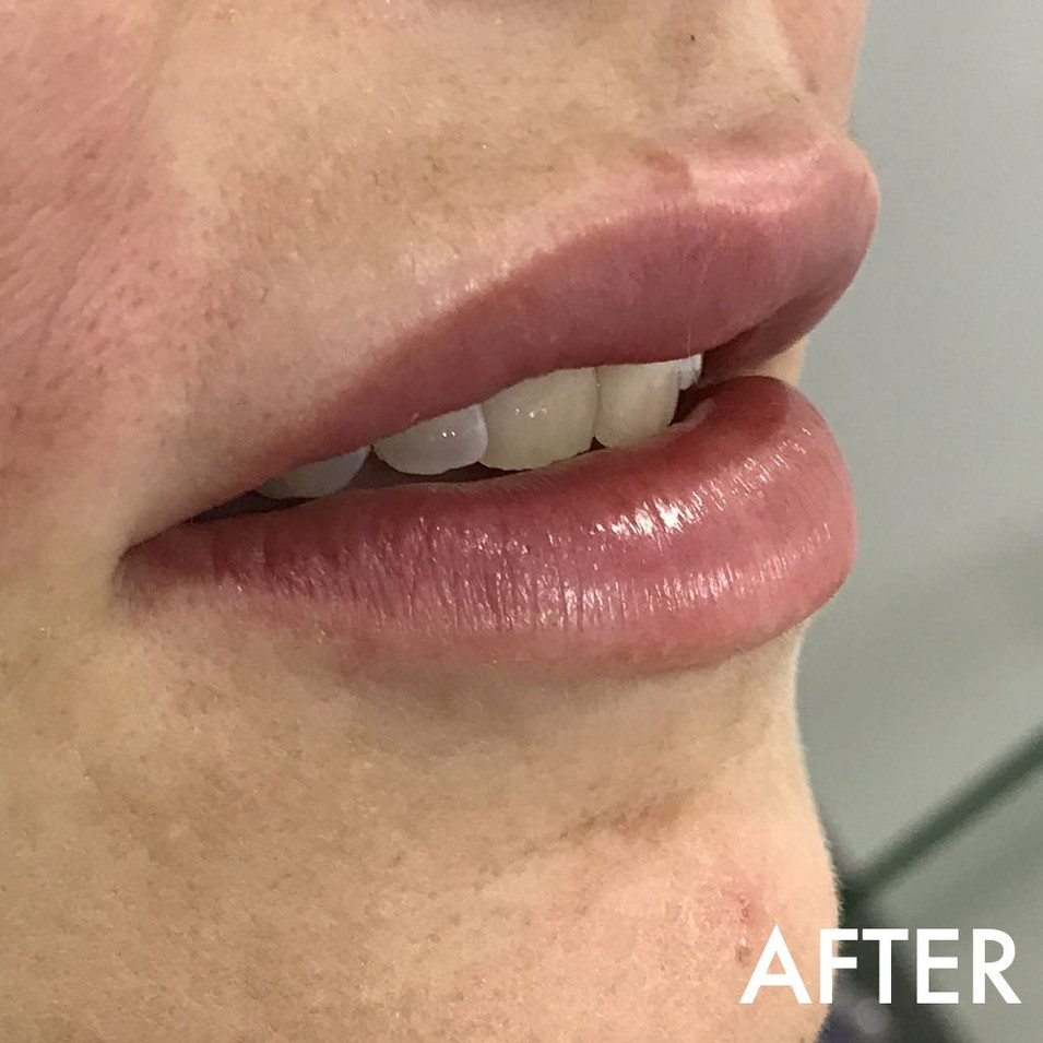 lip_fillers_treatment_4_img_6754_after.j