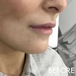 lip_fillers_treatment_1_img_7996_before.