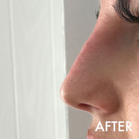 nose_treatment_2_after.jPG