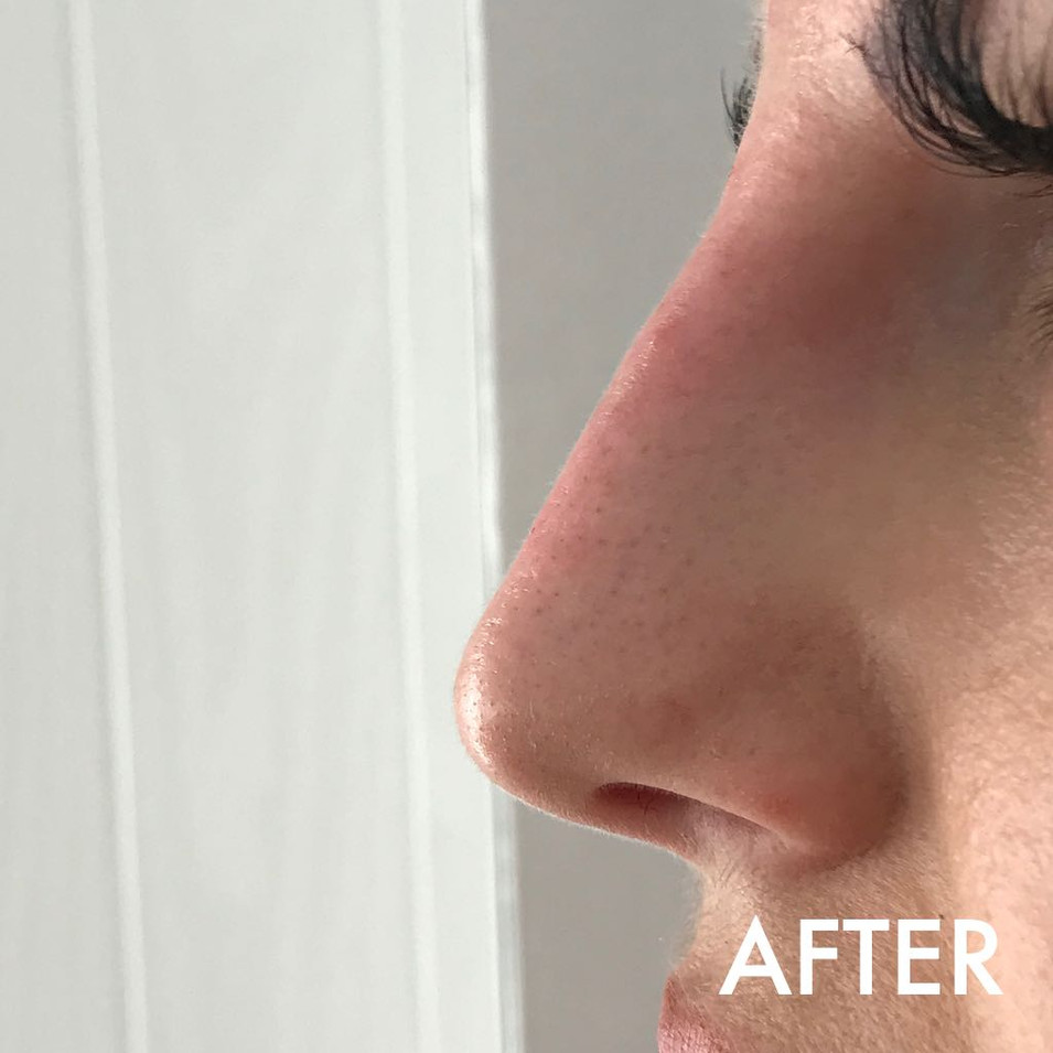 nose_treatment_2_after.jPG