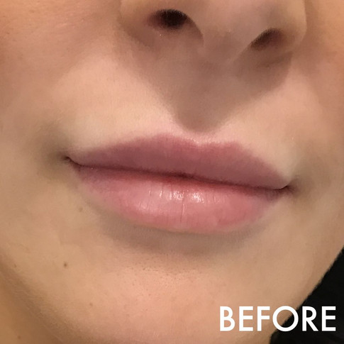 lip_fillers_treatment_6_img_6008_before.