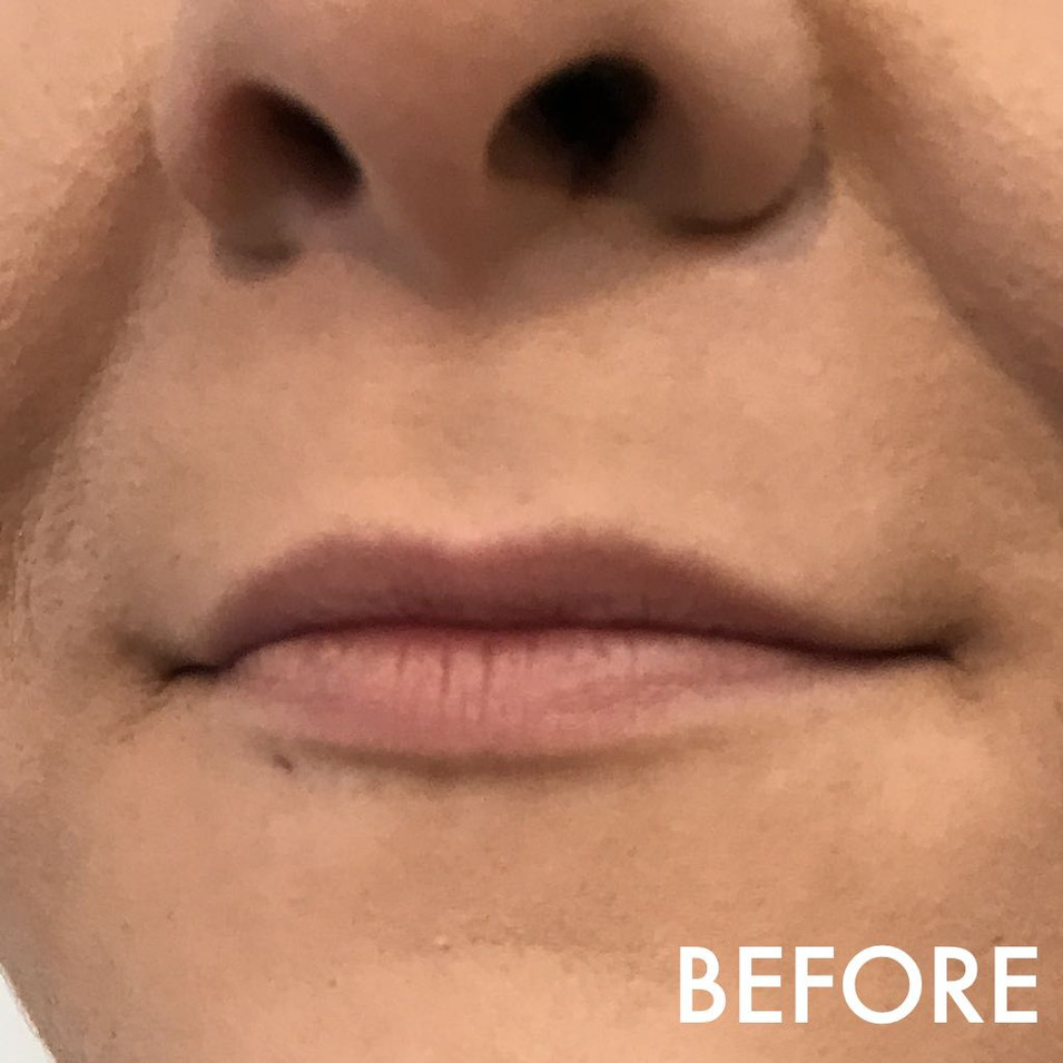 lip_fillers_treatment_11_img_2951_before