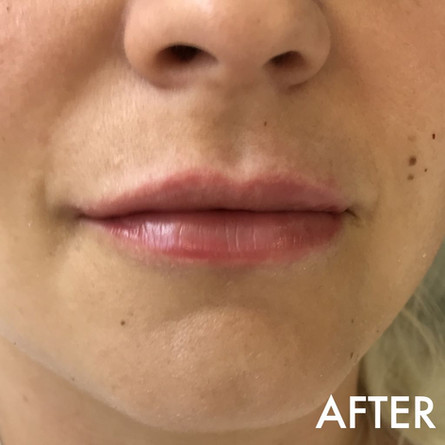 lip_fillers_treatment_5_img_6059_after.j