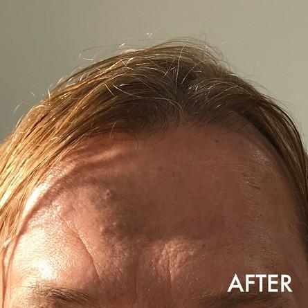 botox_after.jpg