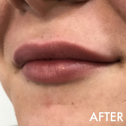 lip_fillers_treatment_11_img_2962_after.