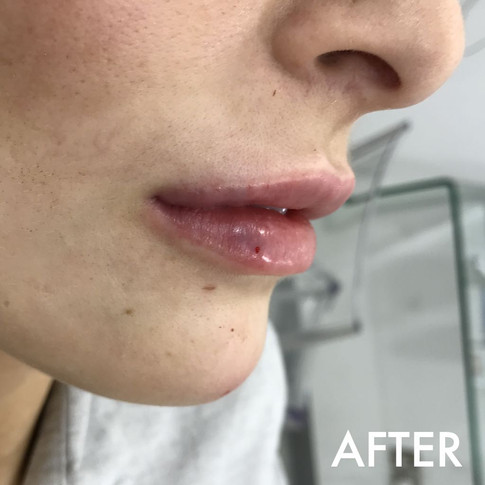 lip_fillers_treatment_1_img_8004_after.j