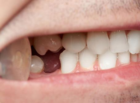 Šta utiče na gubitak zuba kod odraslih?