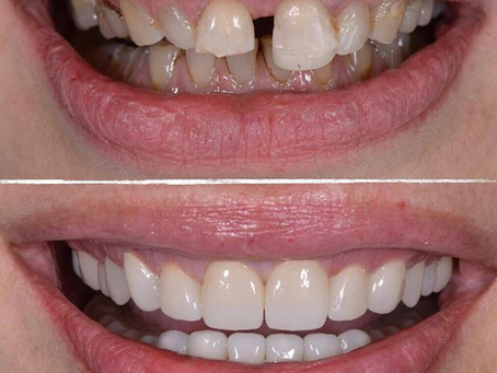 Šta obuhvata potpuna rehabilitacija osmeha?