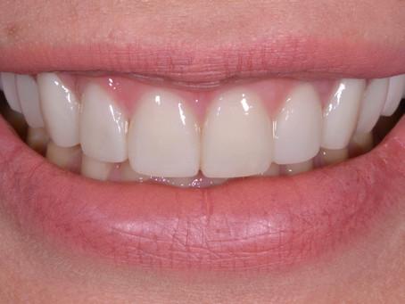 10 stvari koje verovatno niste znali o zubima