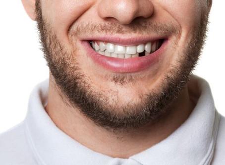 Nedostaje vam zub? Imamo rešenje!