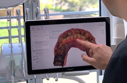 Digitalna stomatologija - šta je to?