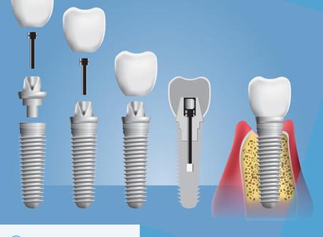 Koje su prednosti zubnih implantata?