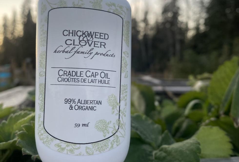 Albertan Cradle Cap Oil