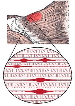 Move Amp Flex Therapeutic Massage Chronic Pain Relief