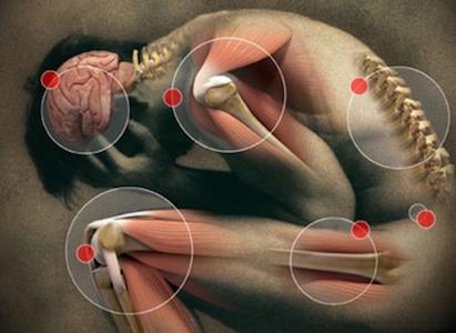 People like Ogres Like Onions: The Moving Pain Phenomenon