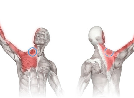 Knots-that-Aren't, or Are They?: Thoughts on Trigger Point Expression