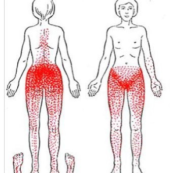 External Trigger Points for Pelvic Pain