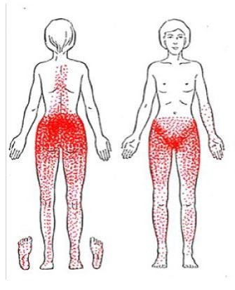 Chronic Pelvic Pain Caused by Trigger Points