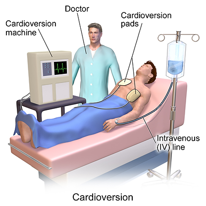 DC Cardioversion.png