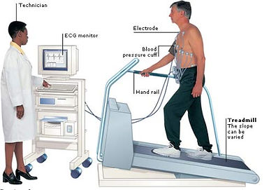 EXercise treadmill test.jpg