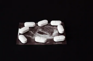 Surgical abortion in Sidvokodvo