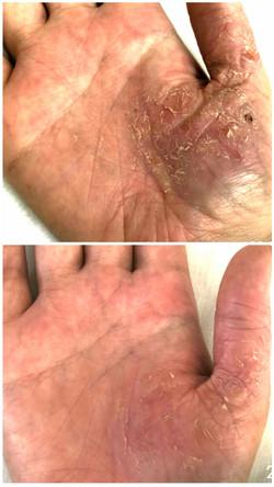 Psoriasis an der Hand