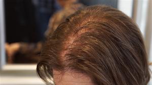 Hair thinning, hair loss