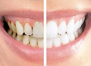 caries , odontologia madrid , dentista madrid