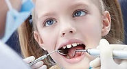 caries , odontologia madrid , dentista madrid