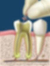 endodoncia madrid