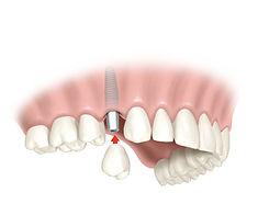 corona sobre implante
