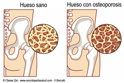 Osteoporosis.png
