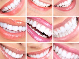 Mentiras en odontología