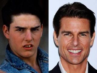 Los famosos tambien van al dentista