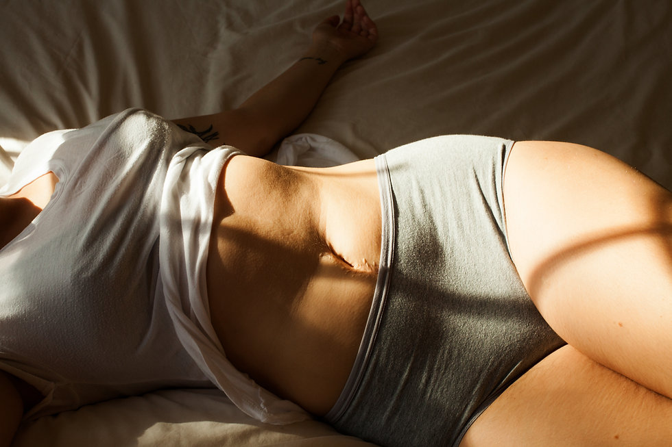 Feminine body with a scar over white sheets